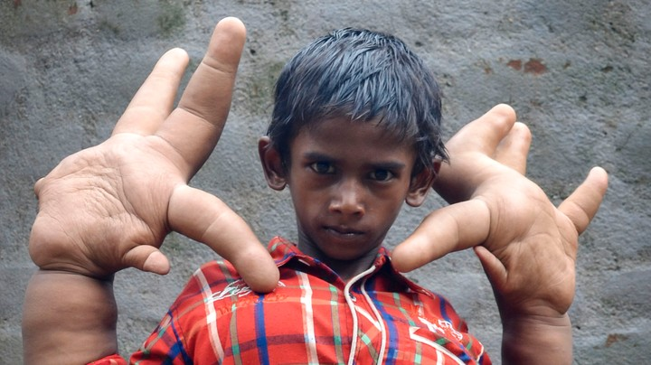 De Jongen Met De Grootste Handen